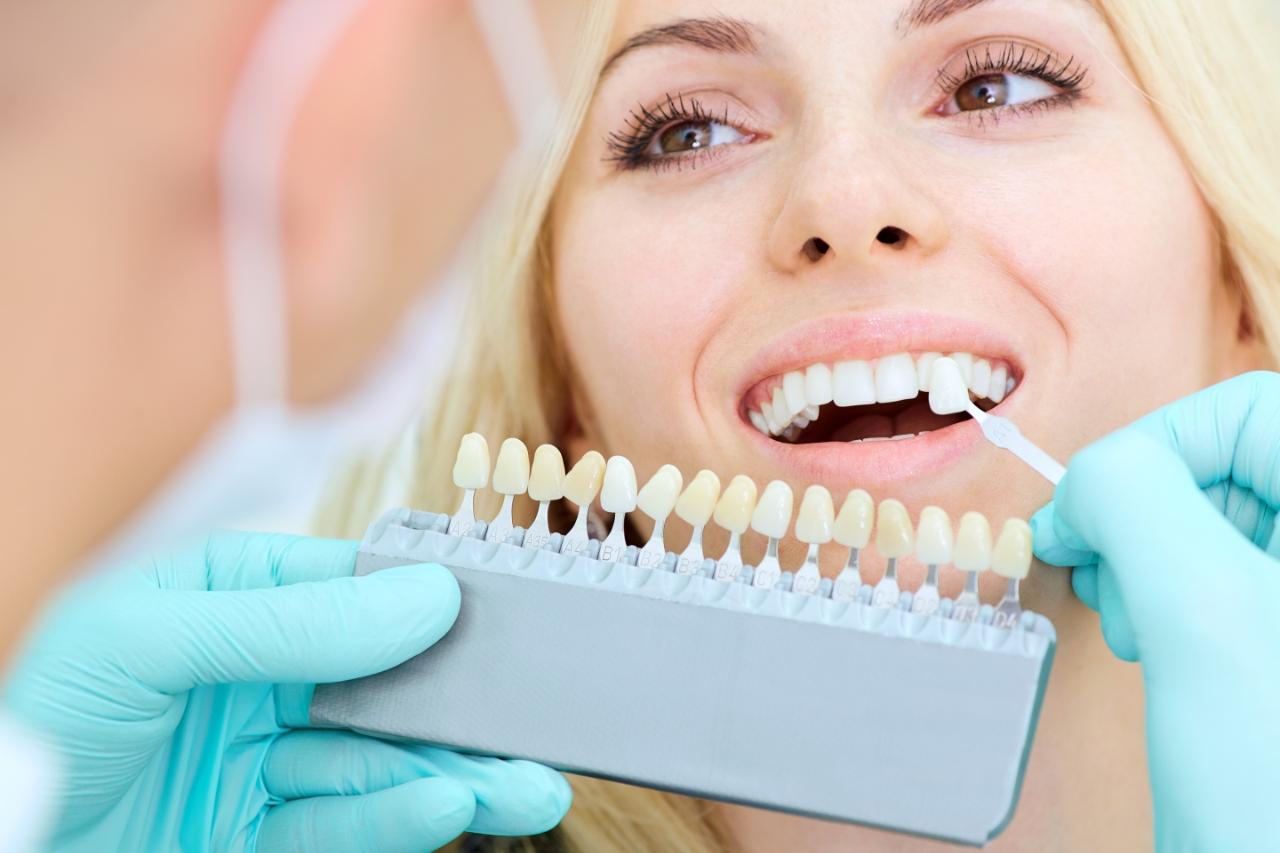 Zahnfarben Abgleich